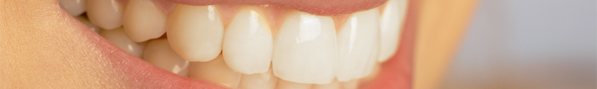 affordable dental veneers, porcelain dental implants, price of veneers, price for veneers, porcelain veneers lake forest