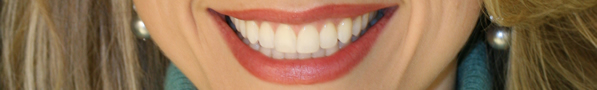 Cosmetic Dental Service, white fillings lake forest